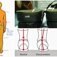 Uneven-Heel-wear