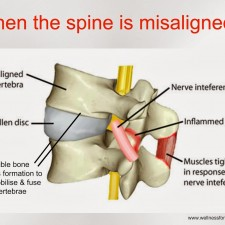 Spine-Misaligned