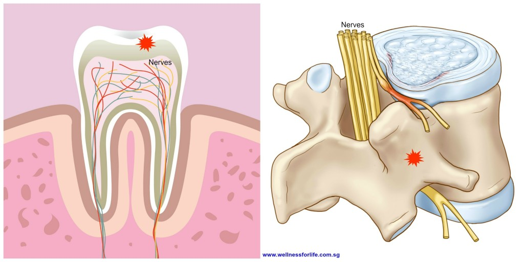 Nerve-Pain_Spine_Tooth