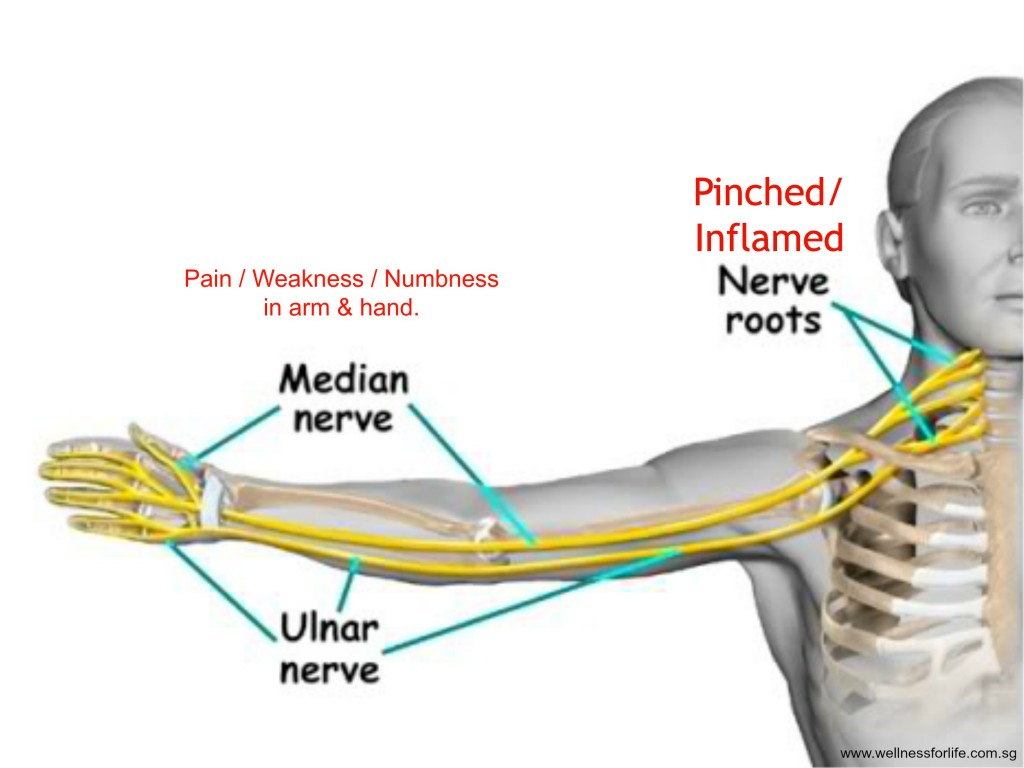 Nerve_Pain_Neck_Arm