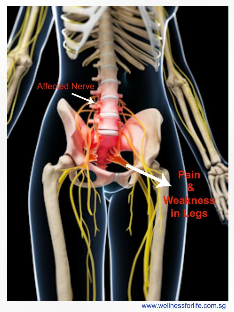 Nerve_leg_pain