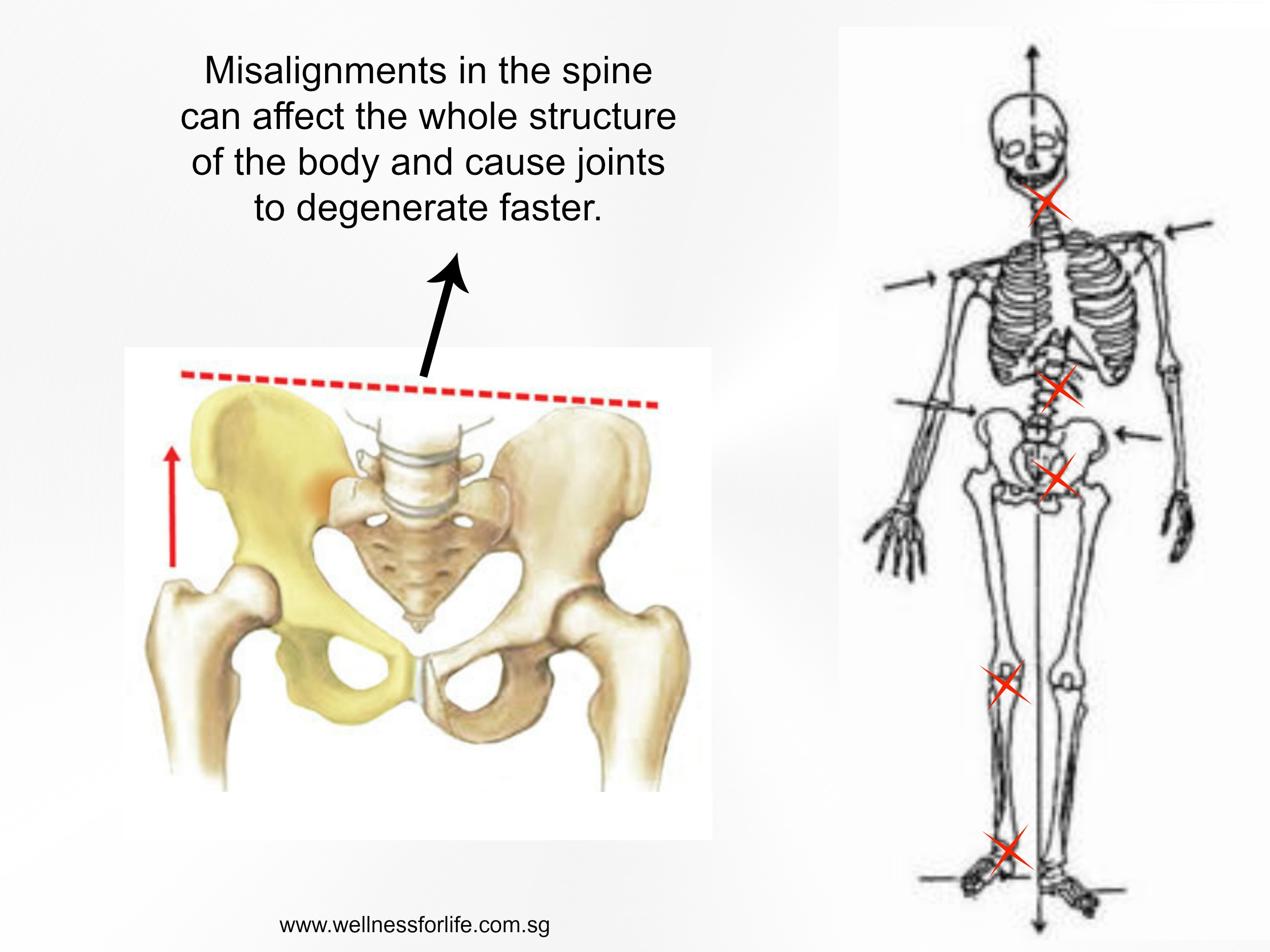 Wellness for Life Chiropractic | LOW BACK PAIN