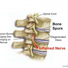 Bone_Spurs